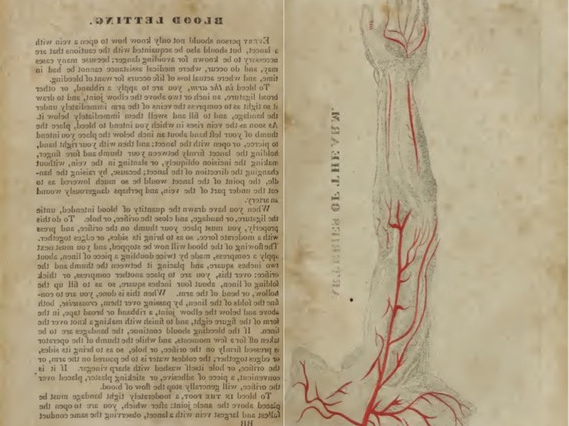 19th-century diagram of arteries in a human forearm